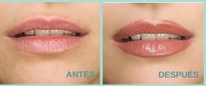 ANTES (4)