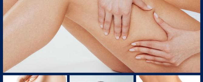 radiofrecuencia-benestar-centro-estetica-barcelona-tratamientos-corporales