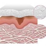 1. Se aplica el Velo de Colágeno MatriCol™