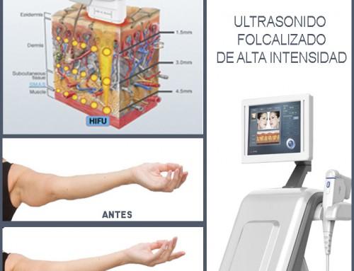 HIFU: Ideal para tratar la flacidez de los brazos